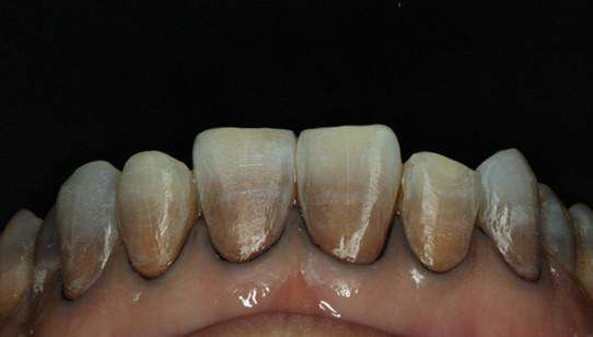 牙齿黑黄怎么办,何如解决牙齿黑黄的问题?